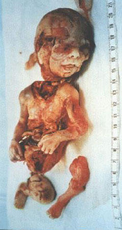 avortement.jpg